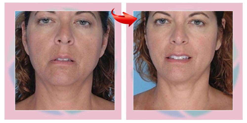 Лазерная липосакция подбородка фото до и после